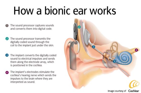 Bionic_Ear