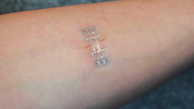 只需貼在傷口表面!全新醫療裝置取代縫針方式